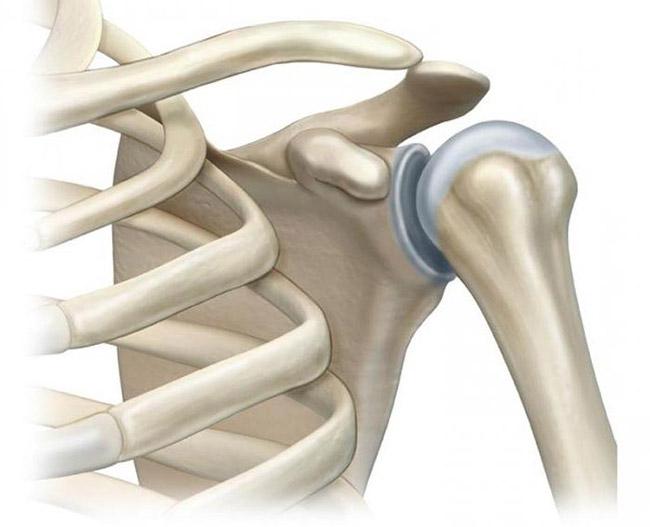 Tulemuste artroosi ravi Kuunarnukid parast vigastusi