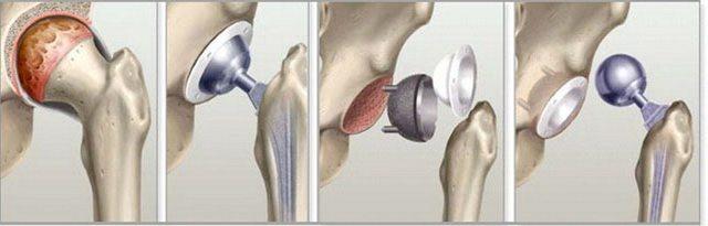 COBRA salvi liigestele Saavutused artroosi ravis