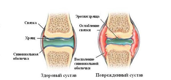 Lugude ja liigeste vigastuste komplikatsioonid
