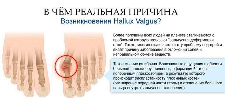 Pluss-phalangeaalne haigus