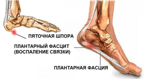 valus liigesed sormede, mida teha Artriidi tolmu poidla