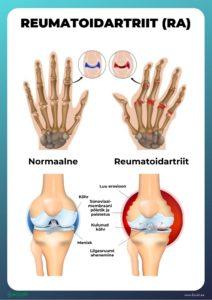 Ravi vahetamisel liigesed Kuidas eemaldada kate liigeste valu