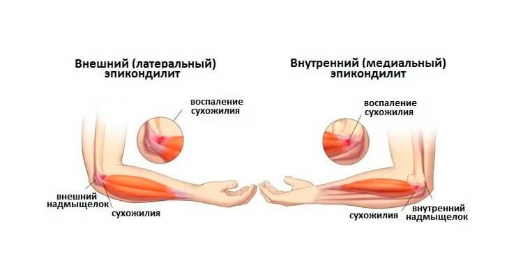 Key Sustav vigastused Polved haiget kommentaare