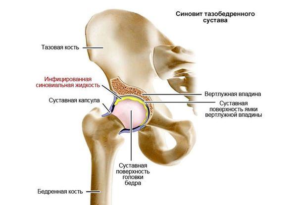 Suurte liigeste ravi