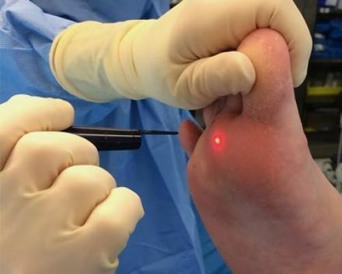 Folk oiguskaitsevahendid arthroosi jalgade ravis
