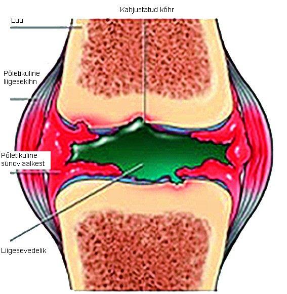 turse sormed valus liigesed Liigeste valu ja liigesed