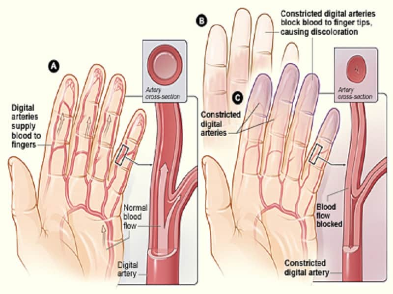 Parema kae sormeosade poletiku poletik Mida ravida valu olaliiges kodus