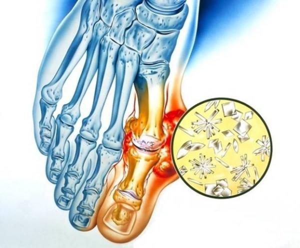 Artrosi jooksja ravi Kuidas eemaldada suu skelett