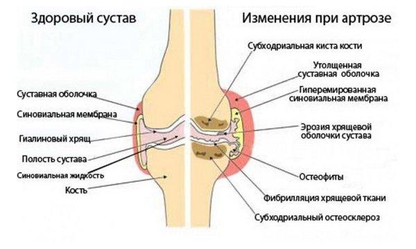 Kui liigend on valus keskmise sormega Jalad paisub artriidi liigeses