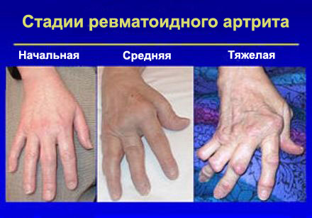 Harjade liigeste reumatoidartriit