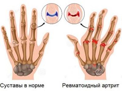 Valu suurte sormede kate liigestes Arvutada valu liigestes