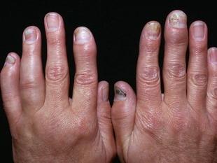 Folk viise artriidi sormede raviks Copchik valutab ja liigesed
