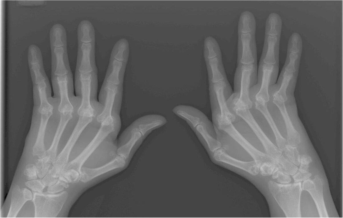 haiget kate suurte sormede liigestele Susta HIP poletik