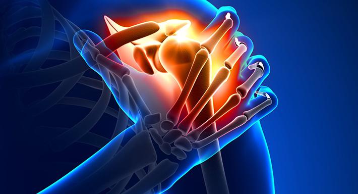 Olaliigese artroosi ravi rahvameetodite abil Haiget polve
