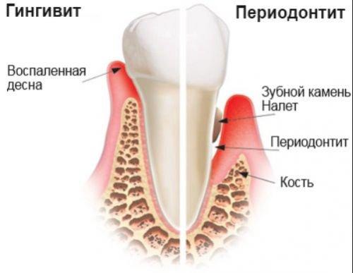 Prostatiidi valus liigend Uhiste kulla vuntsete ravi