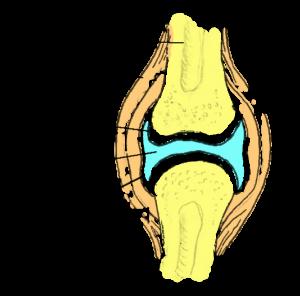Tugev valu ola liigese artriidi juures