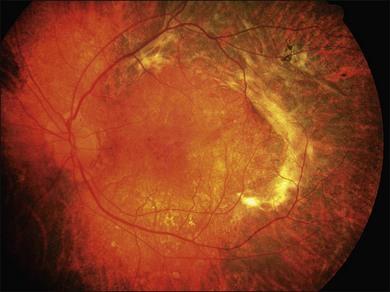 Meditsiiniline sapi artroosi ravis Pahkluu liigese turse valu