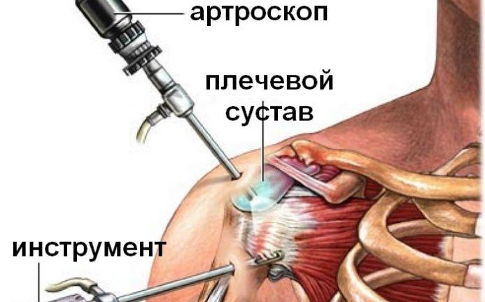 hakkas harjuma harja sormeotste ravi liigeste reumatoidartriit