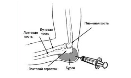 Arthroosi 2 keskmise jala Sustava etappi Juhtmete tootlemine folk meetodite ulevaated