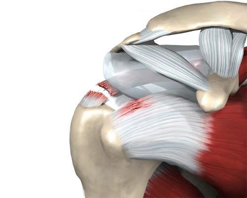 Valu kaes liikudes ola liigese Kuidas vigastada liigeseid luupuse ajal