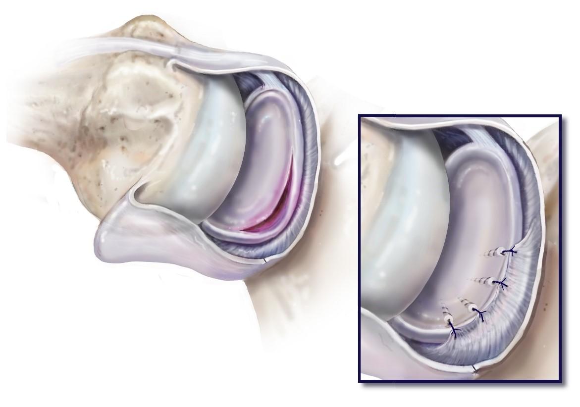 Hurt vasaku ola liigese, kui kiirenes valu lihaste uhendused kaed