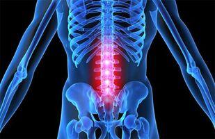 Osteokondrose salvi retseptid