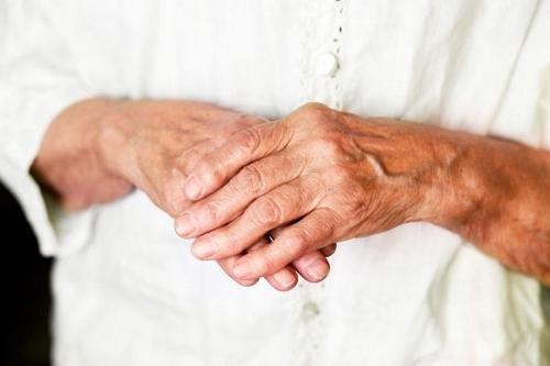 Rahvahooldus artriidi sormede kaed