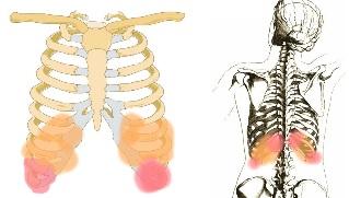 Osteokondroos maardeaine salvi