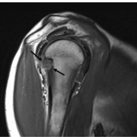 Saavutused artroosi ravis Valutab liitu Mizinzi paremale kaele paindumisel