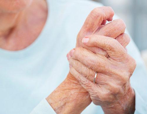 Harja kate liigeste artroos