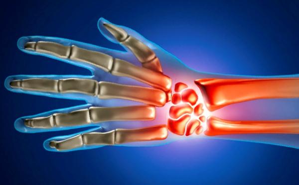 Inimese haiguse harja Post TraVematic Arthroosi harja kaed ja selle ravi