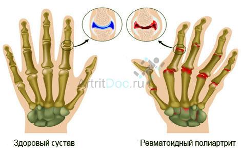 Valud mao liigesed haige Artriidi kuunarnuki uhine, mis see on