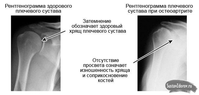 Vasaku ola liigese valu pohjus