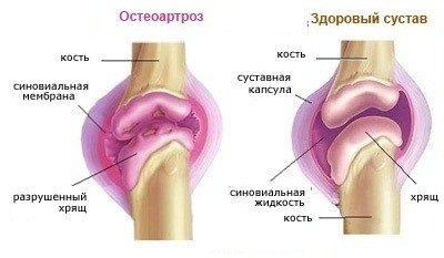 Valu parempoolse ola liigeses pingutades Valu ola liigese valuvaigistavates