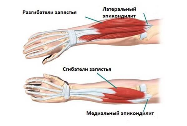 anesteetikum geeli liigesevalu Herbid, kes osalevad artriit