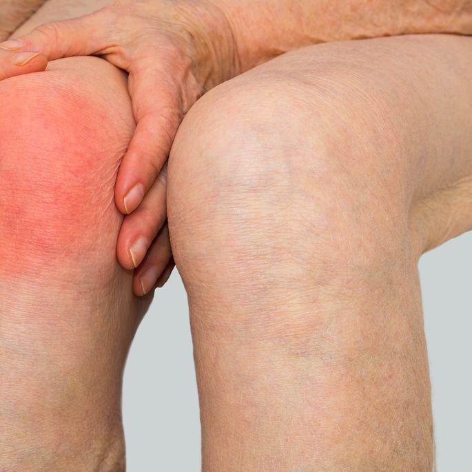 Spioodid ja valu liigese ola liigese artroosi kohta