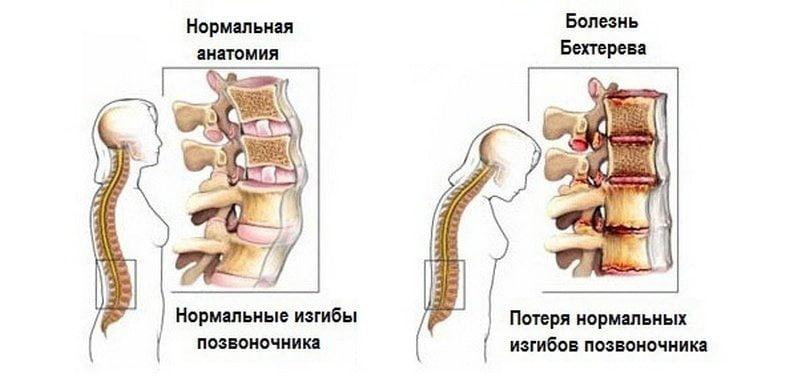 Liigeste haiguste ravi rahvameetodite abil Kuidas ravida valu puusaliigendites pohjustab