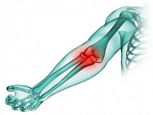 Folk oiguskaitsevahendid artrosiharja kate raviks Kaed kahjustavad luuk