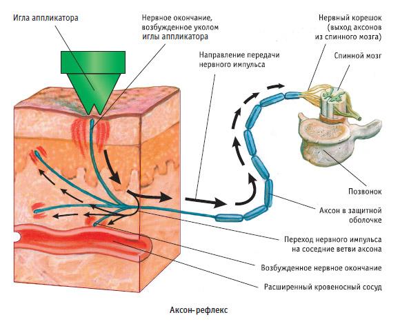 Osteokondroosi meditsiinilised tooriistad