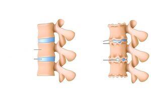 Mis aitab, kui liigesed haiget teevad Mis on artroosi jalad ja tema ravi