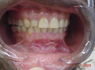 haavandid suus ja liigesevalu Lingonberry liigeste raviks
