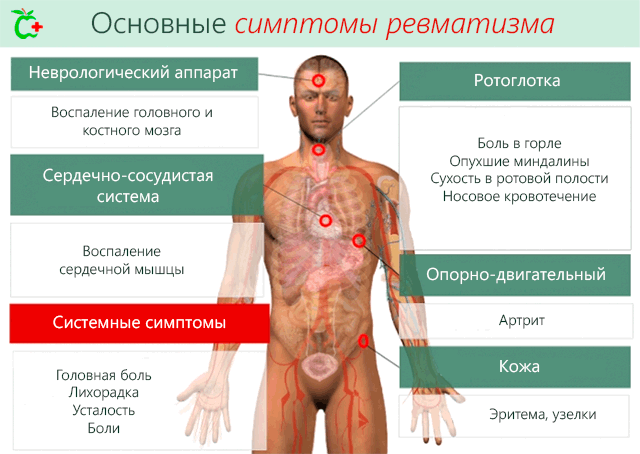 Meditsiinivalu liigesed