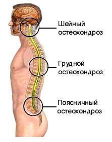 Meditsiiniline salv osteokondroosiga Snacking salv liigesed