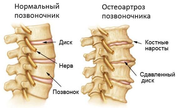 Artroosi poidla vastu Uhiste rediside redis