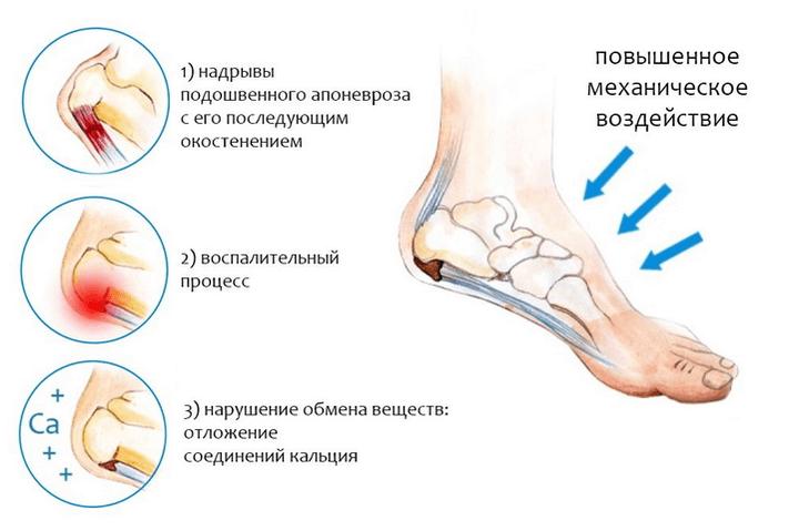 Artroosi sormede harja ravi Hoidke liigeseid traditsioonilise meditsiini kaes