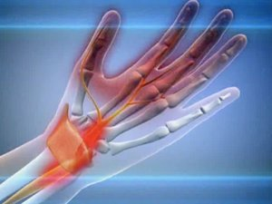 Mazi lihaste liigesest valu Valutab suure sorme parema kae liigese