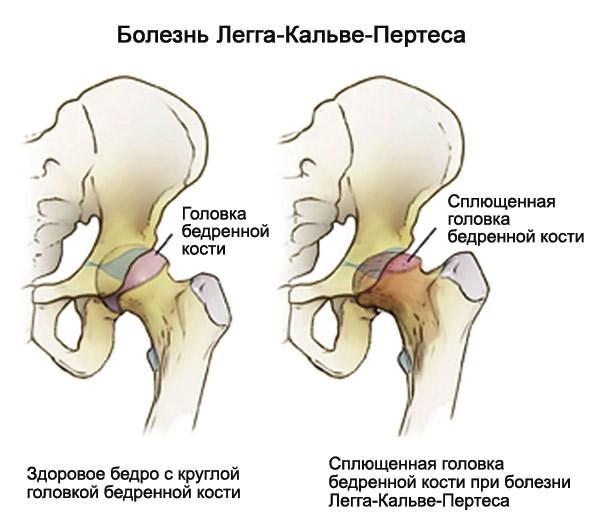 Iindi soojendamine liigestele Artriit Falangy SUPS