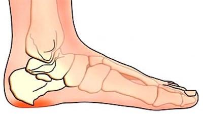 Mida teha, kui jala liigese valus Liigeste eemaldamise ravi