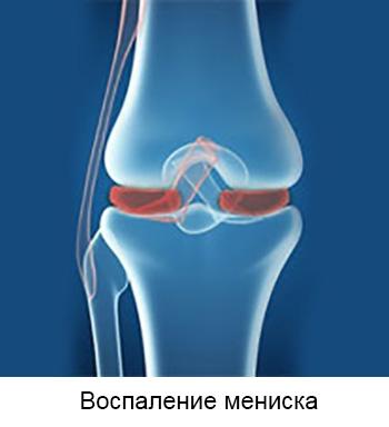 Artrosi kaasaegsete meetodite ravi Arthroosi kasitsi ravi kodus