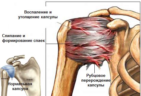 Artriidi harja kasi poletik Endometrioosi spin haiget